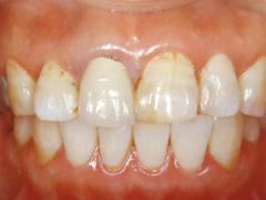 前歯の差し歯が気になる
