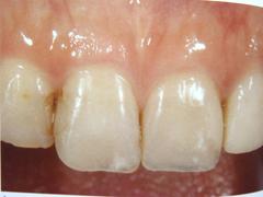 前歯の歯と歯の間の色が気になる