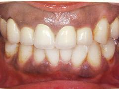 歯ぐきの色が気になる